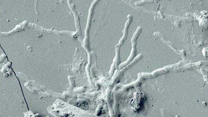 scoperti neuroni umani in una vittima dell eruzione del 79 d c