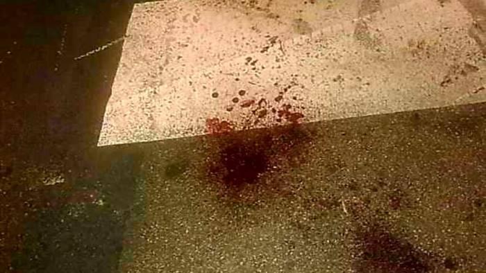 Studente del Mercalli trovato con diverse ferite d'arma da taglio in bagno
