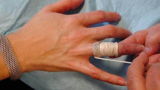 Ți-a rămas blocat pe deget inelul ori verigheta? Această metodă funcționează 100 %
