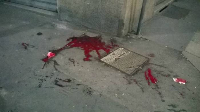Accoltellato per una rapina dopo Napoli-Juve: 16enne è fuori pericolo