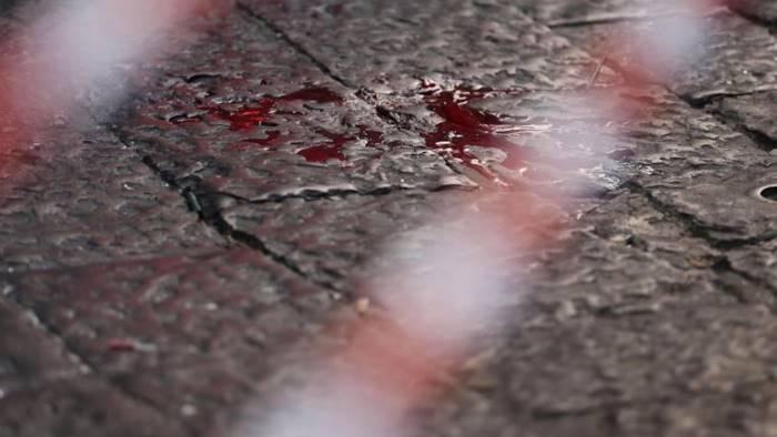 Napoli, spari in pieno giorno: clinicamente morto il fratello del boss Vastarella