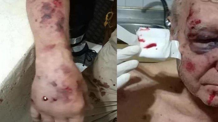 anziano 83enne picchiato in strada e caccia agli aggressori